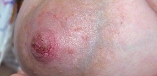 Forebygging og leging av såre, sprukne brystvorter
