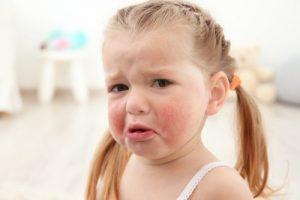 Vanlige matallergier; jente med allergi