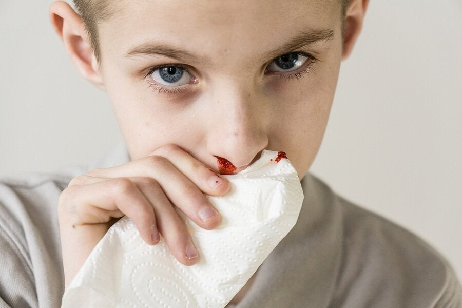 Neseblod hos barn: årsaker og behandling
