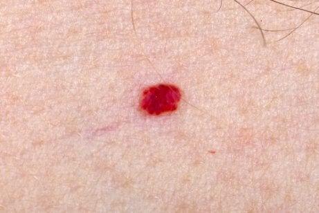 Hva skal jeg gjøre hvis barnet mitt har angiomer?