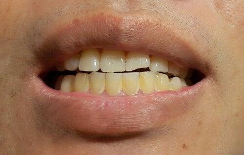 Forekomst av misfarging av permanente tenner
