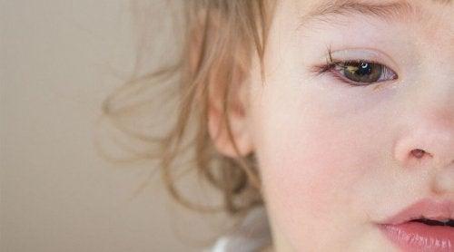 Lite barn med øyekatarr