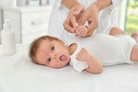 En baby med eksem i ansiktet ligger på et bord.