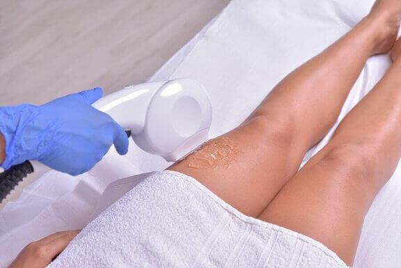 Hårfjerning med laser på beina