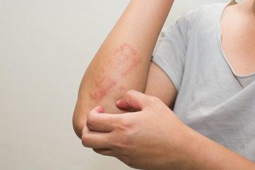 En kvinne med et hudutslett på armen.