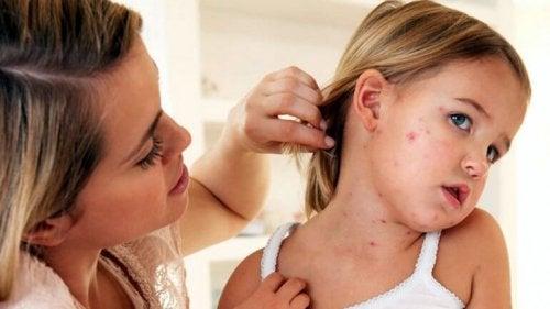 Meslinger hos barn: Symptomer, behandling og forebygging