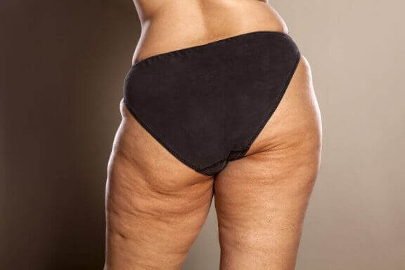 Vet du hvordan du kan bekjempe cellulitter?