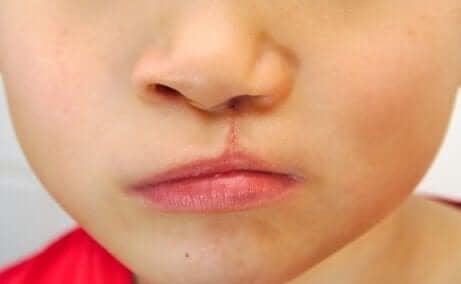 Medfødte hode og ansiktsmisdannelser hos spedbarn er ikke så uvanlig.