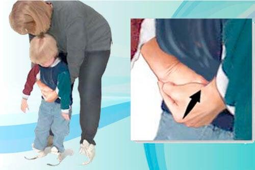 Heimlichs manøver på et barn