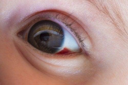 Rød Prikk På Øyet