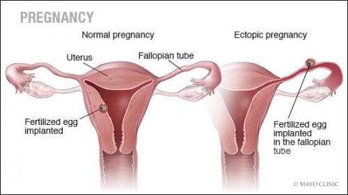 Ektopisk graviditet.