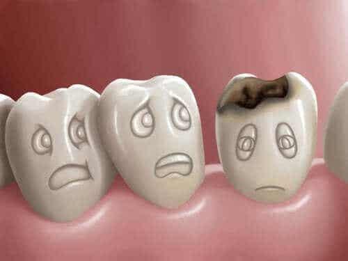 Hva er hull i tennene og hvordan kan de forhindres?
