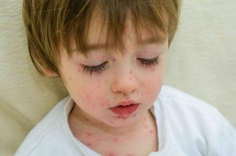 7 smittsomme sykdommer hos barn i skolealderen