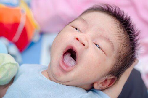 Oral trøske: Årsaker, symptomer og forebygging