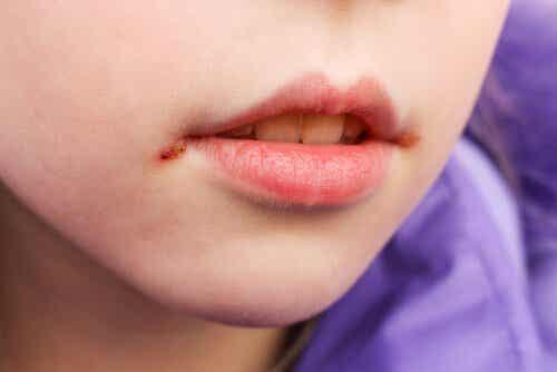 Når barn får munnsår: Årsaker og behandlinger