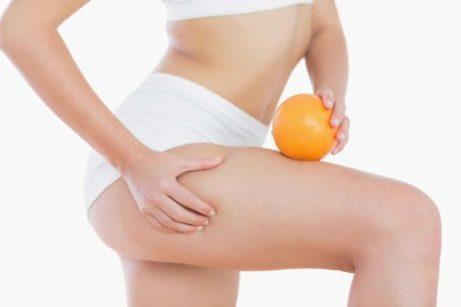 Hvordan bekjempe cellulitter etter graviditet