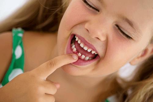 Alt du trenger å vite om tannverk hos barn
