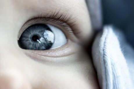 Barn med et dovent øye.