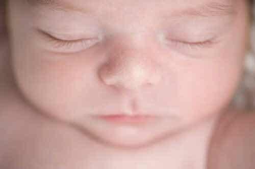 Miliaria eller svetteutslett hos spedbarn: Hva er det?