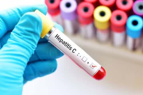 Hepatitt C under graviditet